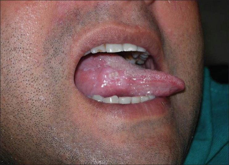 early invasive squamous cell carcinoma of the tongue