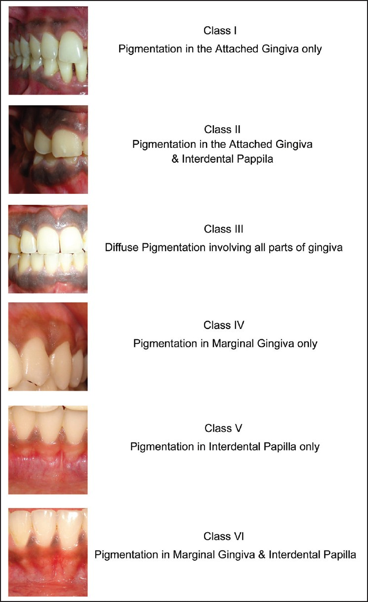 The Correlation Of Skin Color And Gingival Pigmentation Patterns In