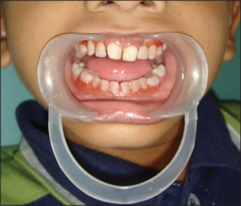 Early prosthodontic intervention in a child patient of hypohidrotic