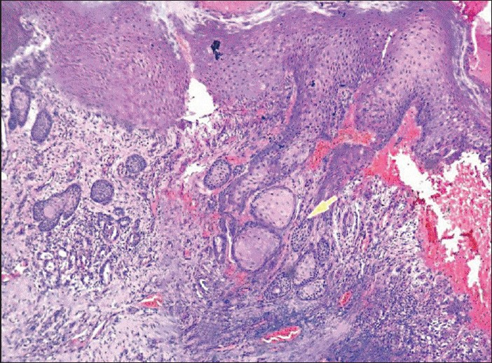 Figure 2: Hyperkeratinised stratified squamous epithelium with ulceration and pseudoepitheliomatous hyperplasia (10×)