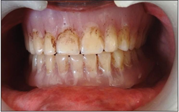 Bouchers Complete Denture Prosthodontics Pdf