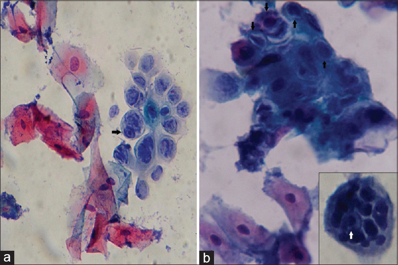 Figure 2: Oral herpes zoster: Cytologically, uniform nucleocytomegaly with normal nuclear-cytoplasmic ratio, thickened nuclear membrane, glassy homogeneous chromatin, inconspicuous nucleoli (a) and round-to-oval deep eosinophilic-to-dark purple intranuclear inclusions (black arrows) separated from nuclear membrane by a halo. (b) Multinucleated giant cells (b, inset) with nuclear molding and intranuclear inclusion (white arrow) also present (Pap, ×400)