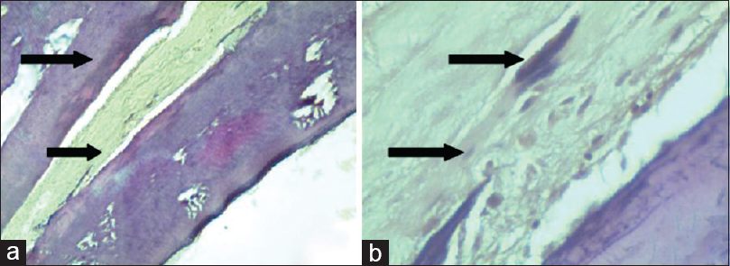 Figure 6: (a) Photomicrographs showing fibrocellular connective tissue stroma adjacent to normal dentinal tubules, bundles of collagen fibers with plump fibroblasts, and areas of blood vessels in honey samples. (b) Photomicrographs showing fibrous connective tissue stroma with bundles of collagen fibers and areas of hematoxyphilic structures (mineralized components)
