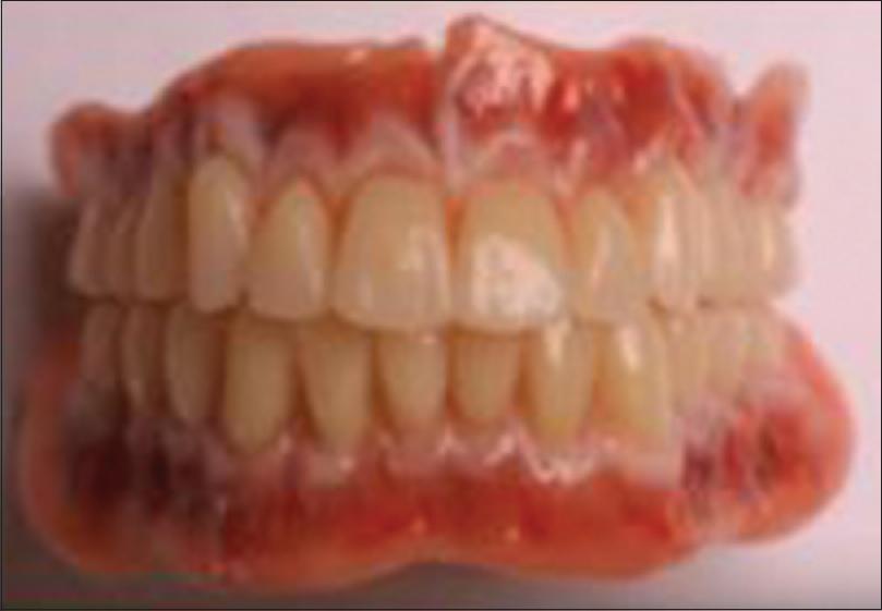 Happiness dentures liner plastic strip regret