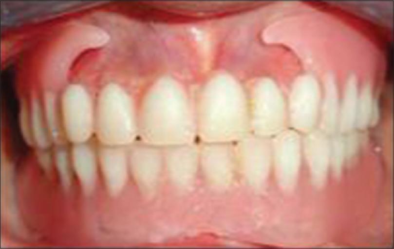 Remarkable, rather dentures liner plastic strip something
