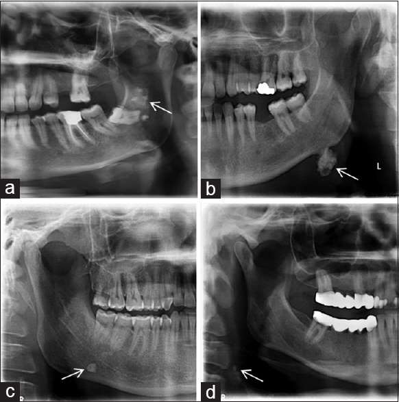 "Figure 1: (a) The white arrow on the panoramic image shows the tonsilloliths as radiopaque masses superimposed on the ramus. (b) The white arrow on the panoramic image presents a large calcified lymph node located near the mandibular angle with a ""cauliflower-like"" appearance. (c) The white arrow on the panoramic image shows a sialolith over the right mandibular border. (d) The white arrow shows the carotid artery calcification seen on panoramic image at the level of third cervical vertebrae"