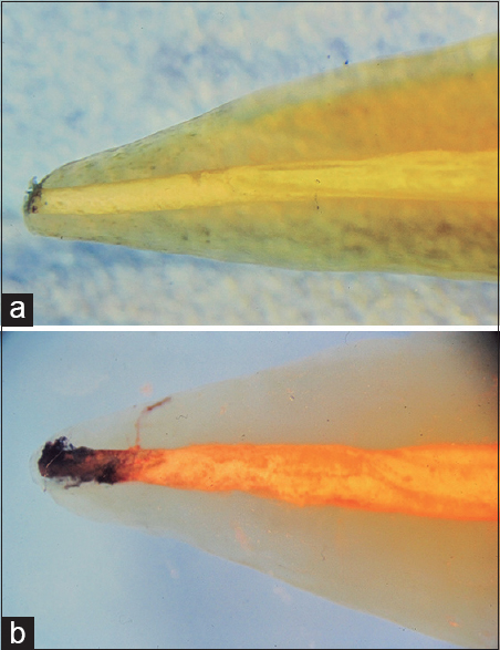 Figure 2: (a) Scarce dye penetration in a tooth treated with AH Plus<sup>®</sup>. (b) Large amount of dye diffusing at the apex in a tooth treated with Pulp Canal Sealer<sup>®</sup>