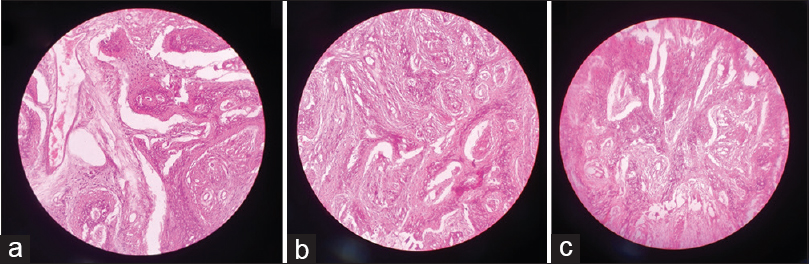 "Figure 2: Assessment of staining quality – (a) ""xylene"", (b) ""c pure coconut oil,"" and (c) ""pure groundnut oil"" as clearing agent"